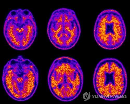 韓政府敲定老年癡呆症國家責任制加強方案